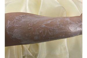 コスメデコルテのクレンジングクリームを使っていたら腕にモロモロがでてきたときの画像