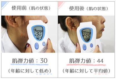 使用前使用後の肌の状態