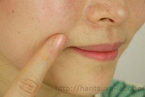 モデルの口元に部分用クリーム塗布している画像