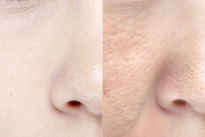 綺麗な毛穴と開いた毛穴の比較