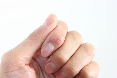 ひび割れした指を閉じている片手