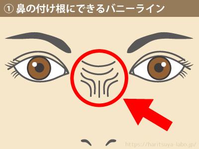 鼻の付け根にできるバニーライン