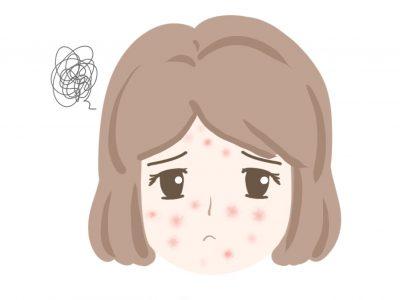 アレルギーで顔に赤みや炎症がある女性のイラスト