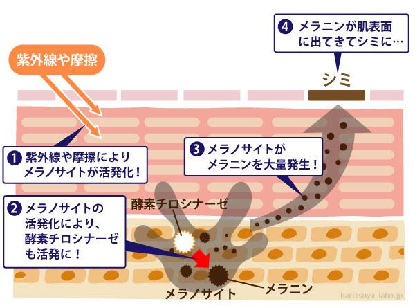 紫外線や摩擦によるシミ