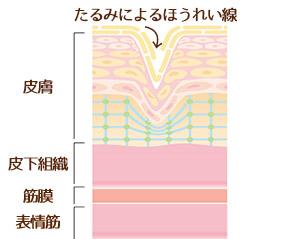 たるみによるほうれい線と皮膚の構造