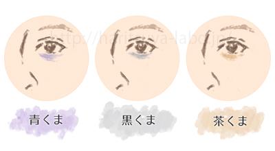 目の下のクマの種類