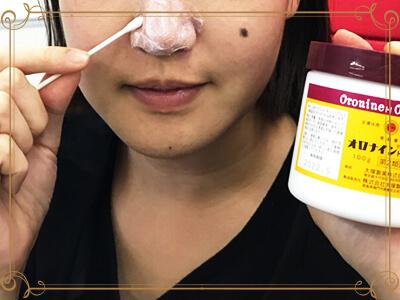 オロナイン軟膏を鼻に塗る女性の写真