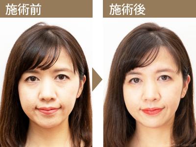美容鍼の体験ビフォーアフター