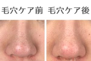 毛穴ケア前後の鼻比較