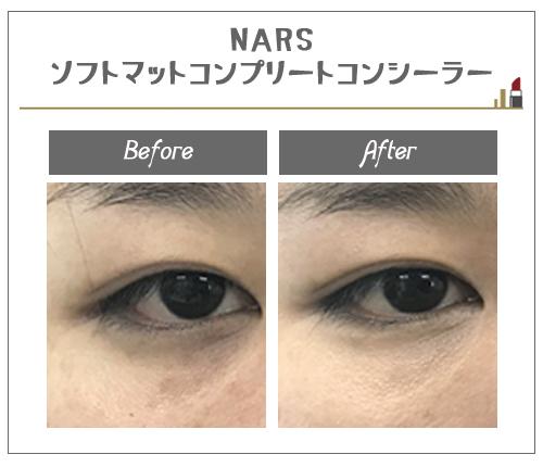 NARS ソフトマットコンプリートコンシーラーの使用結果