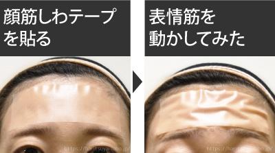 実際に顔筋しわテープを使用