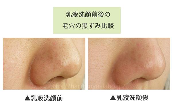 乳液洗顔ビフォーアフタ-2
