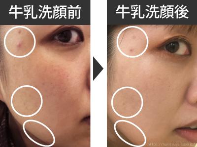 大人ニキビの肌荒れに牛乳洗顔は効果あり?