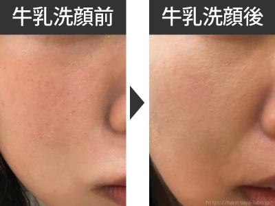 牛乳洗顔1週間使用前後の肌の保湿状態