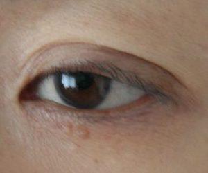 トータルリペア アイセラム使用前 左目