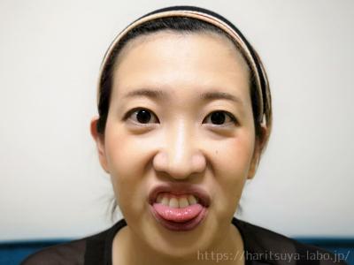 舌を前歯で軽く挟んで顔半分の力を抜いて上前歯を出し、頬の筋肉を鍛える