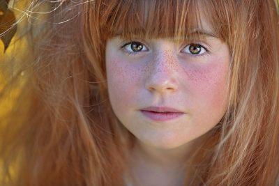 freckles_girl