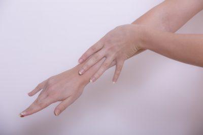 女性の腕の写真