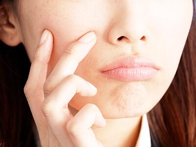 肌荒れに悩む女性の写真