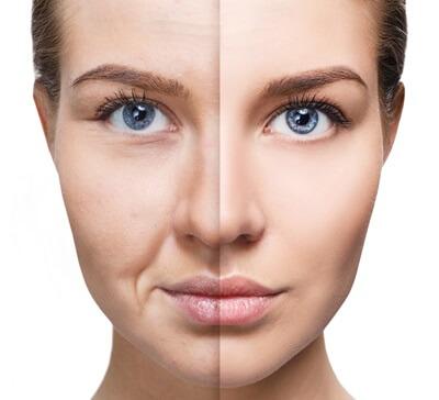 老化した肌と若い肌の違い