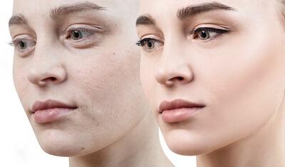艶のある若い肌と老化した肌