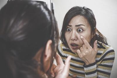 肌トラブルに驚く女性