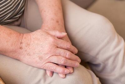 手のシミに悩む女性