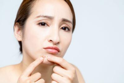 顎のニキビに悩む女性